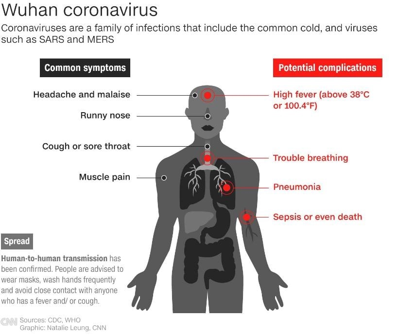 ways to prevent the coronavirus_Wuhan-CoV_2019 nCoV